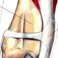 Patellar Luxation