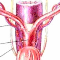Ovariohysterectomy